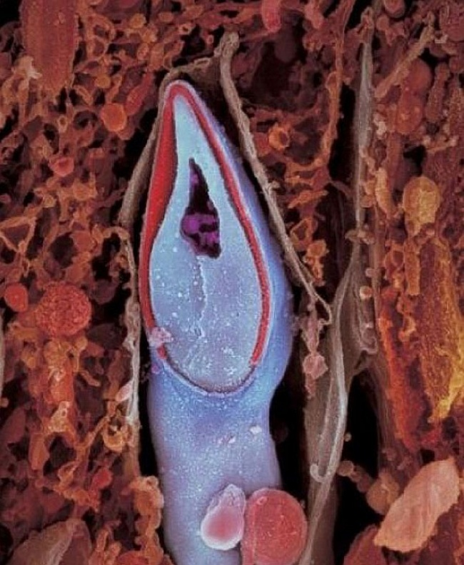 The head of the sperm contains all of the genetic material. Here's a POV of the sperm.