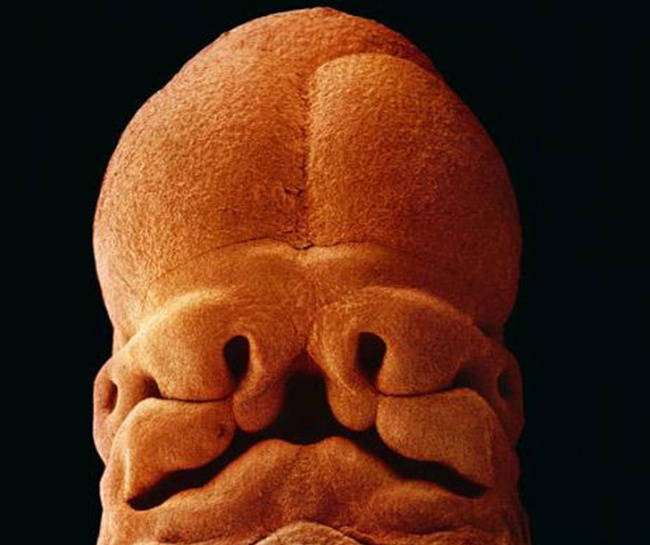 The face at just five weeks, showing signs of eyes, mouth and nostrils.
