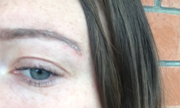 Eyebrows now. Scarring on end of brow