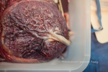 The placenta - a little gross, a LOT amazing