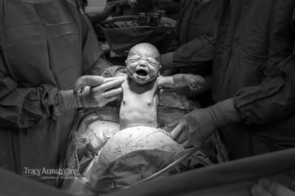 C-section photo - Source: IAPBP Photographers